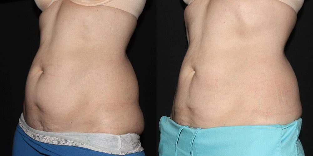 Patient 8a CoolSculpting Before and After