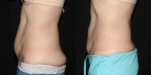 Patient 8c CoolSculpting Before and After