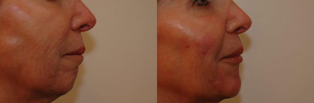 Patient 1 Radiesse® Before and After
