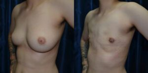 Patient 7a Transgender Plastic Surgery Before and After