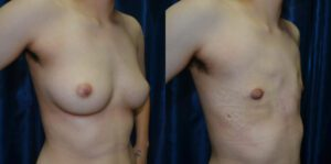 Patient 7c Transgender Plastic Surgery Before and After
