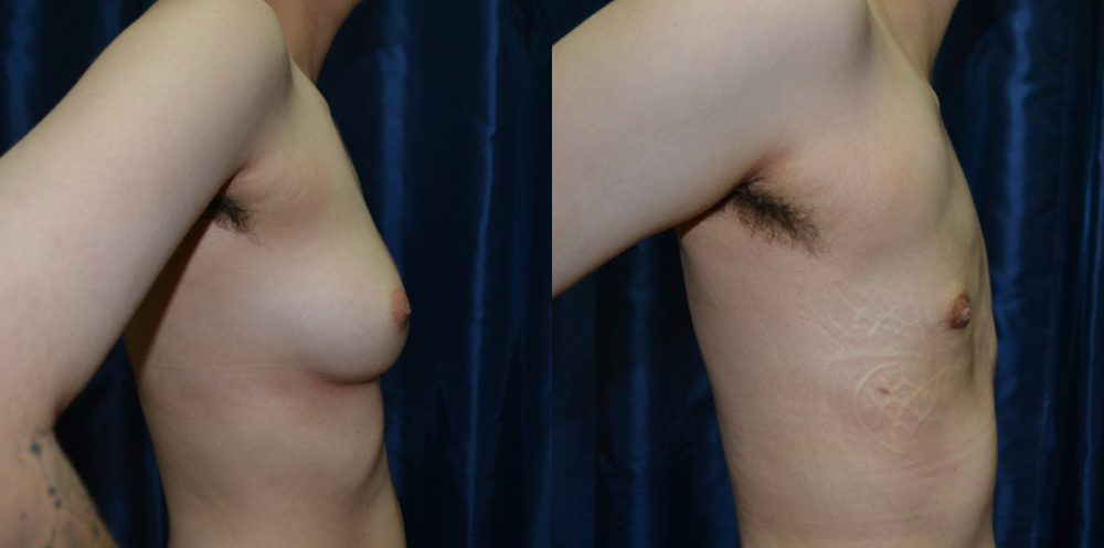 Patient 7b Transgender Plastic Surgery Before and After