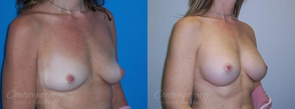 Case 20 Before and After Breast Augmentation Right Side Angle View