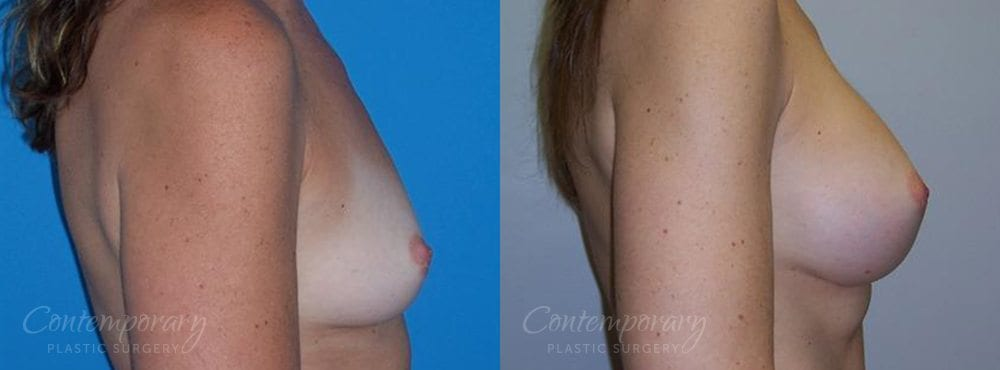 Case 20 Before and After Breast Augmentation Right Side View