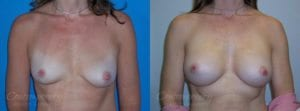 Case 20 Before and After Breast Augmentation Front View