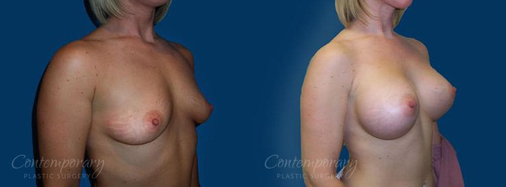 Case 21 Before and After Breast Augmentation Right Side Angle View