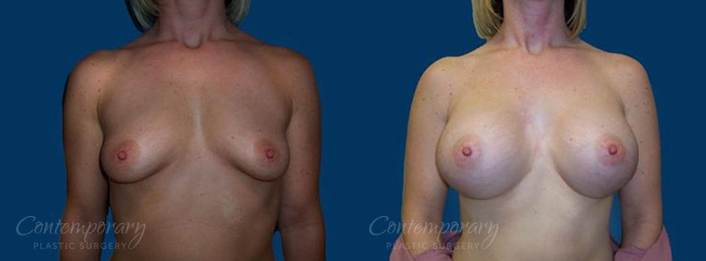 Case 21 Before and After Breast Augmentation Front View