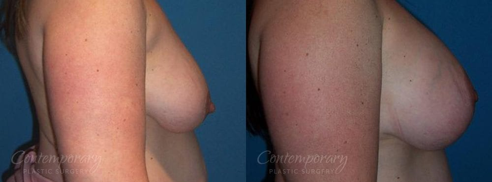 Case 26 Before and After Breast Augmentation Right Side View