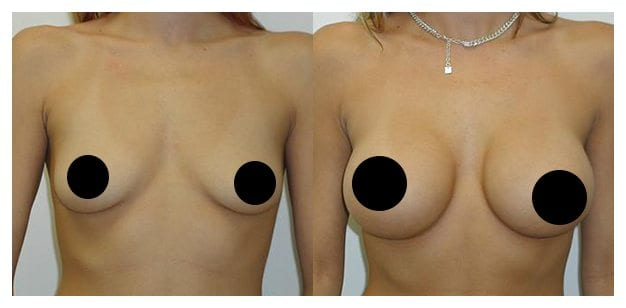 Case 9 Before and After Breast Augmentation Front View With Black Dots for Censoring
