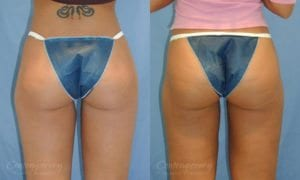 Case 13 Before and After Liposuction Back View