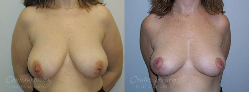 Case 16 Before and After Breast Reduction Front View