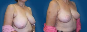 Case 22 Before and After Breast Reduction Right Side Angle View