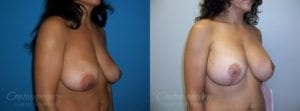 Case 27 Before and After Breast Lift Right Side Angle View