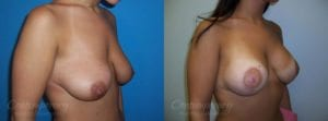 Case 28 Before and After Breast Lift Right Side Angle View
