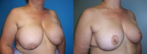 Case 20 Before and After Breast Reduction Right Side Angle View
