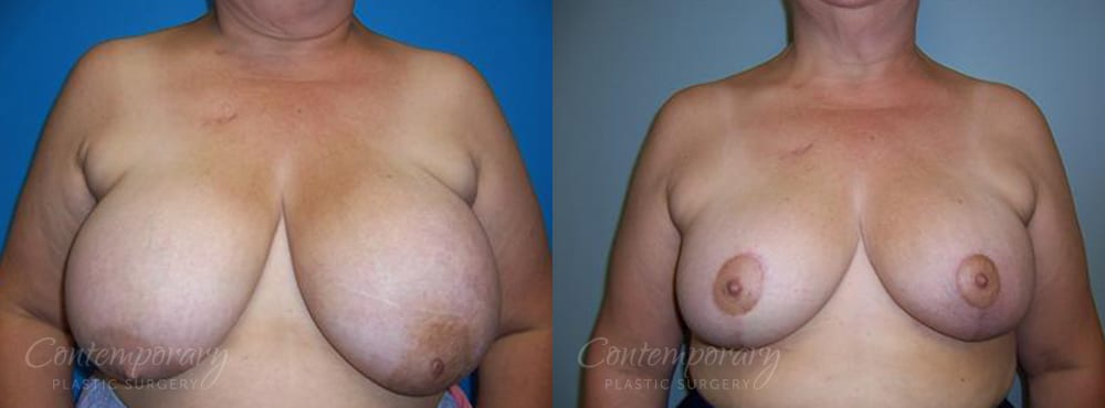Case 20 Before and After Breast Reduction Front View