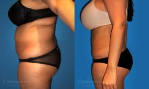 Case 4 Before and After Liposuction Left Side View
