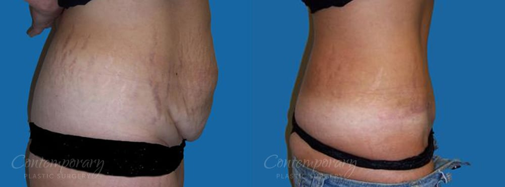 Case 5 Before and After Tummy Tuck Right Side View