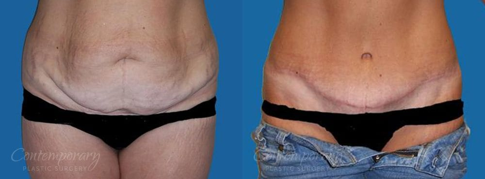 Case 5 Before and After Tummy Tuck Front View