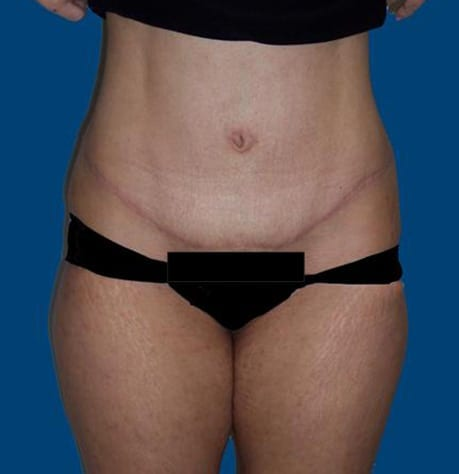 Before and After Comparison of New Jersey Tummy Tuck Patient
