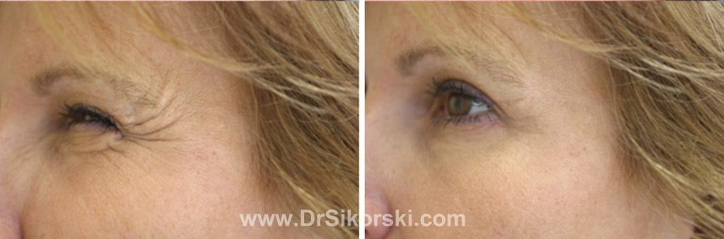 BOTOX® Mission Viejo Before and After Patient F