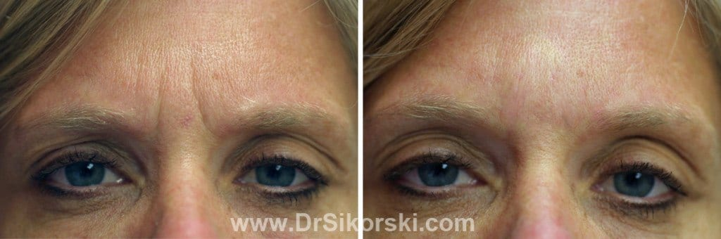 BOTOX® Mission Viejo Before and After Patient G