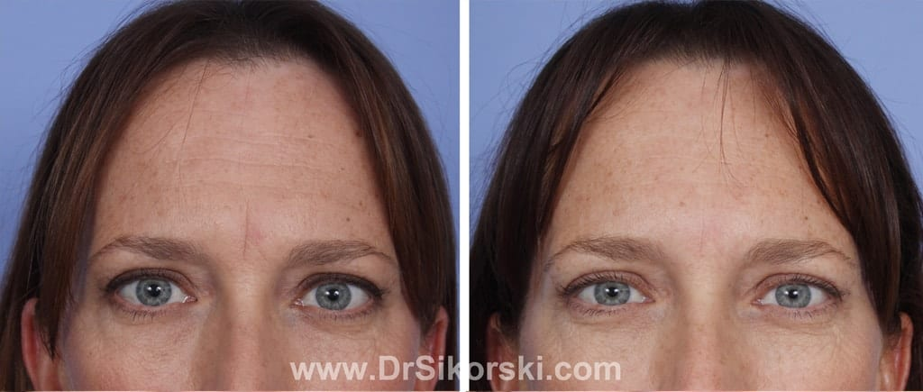 BOTOX® Mission Viejo Before and After Patient I