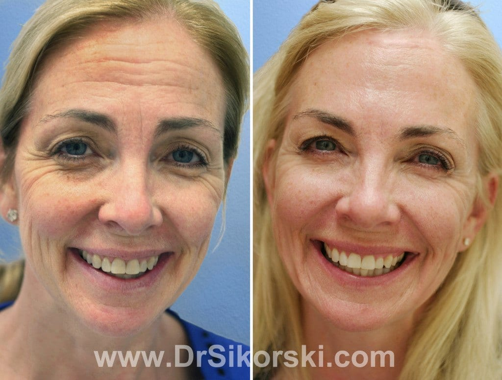 BOTOX Orange County Before and After Patient A