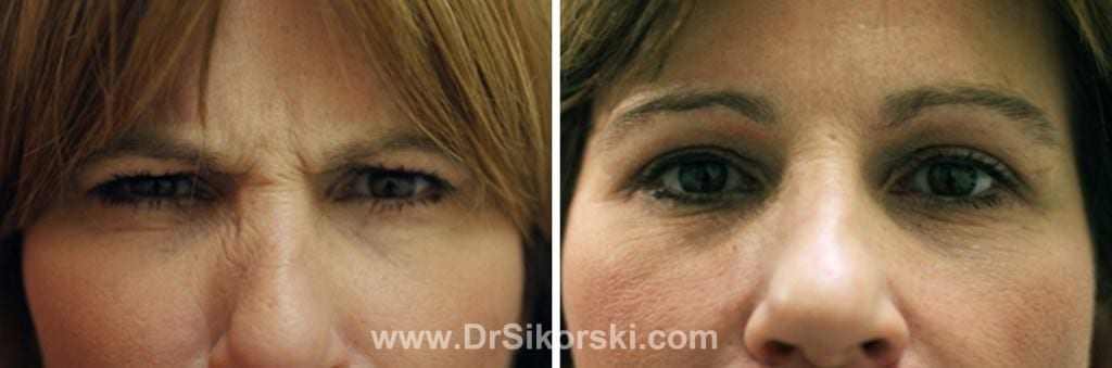 BOTOX® Orange County Before and After Patient B