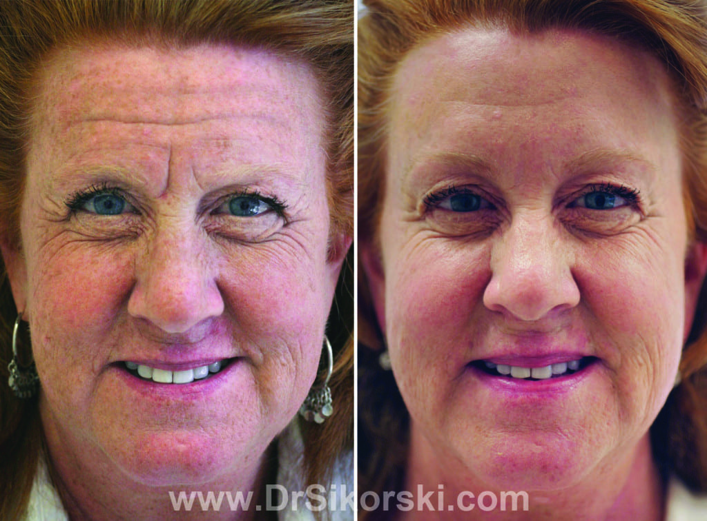 BOTOX Orange County Before and After Patient D
