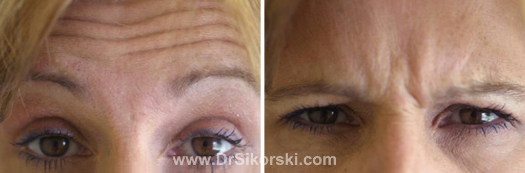 BOTOX® Orange County Before and After Patient E