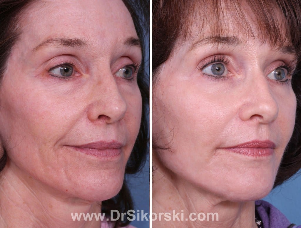 Bellafill Mission Viejo Before and After Patient E