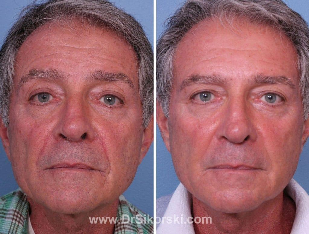 Bellafill Orange County Before and After Patient A