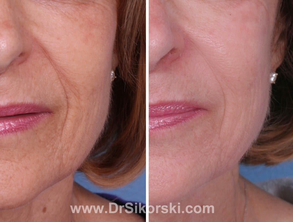 Bellafill Orange County Before and After Patient B1
