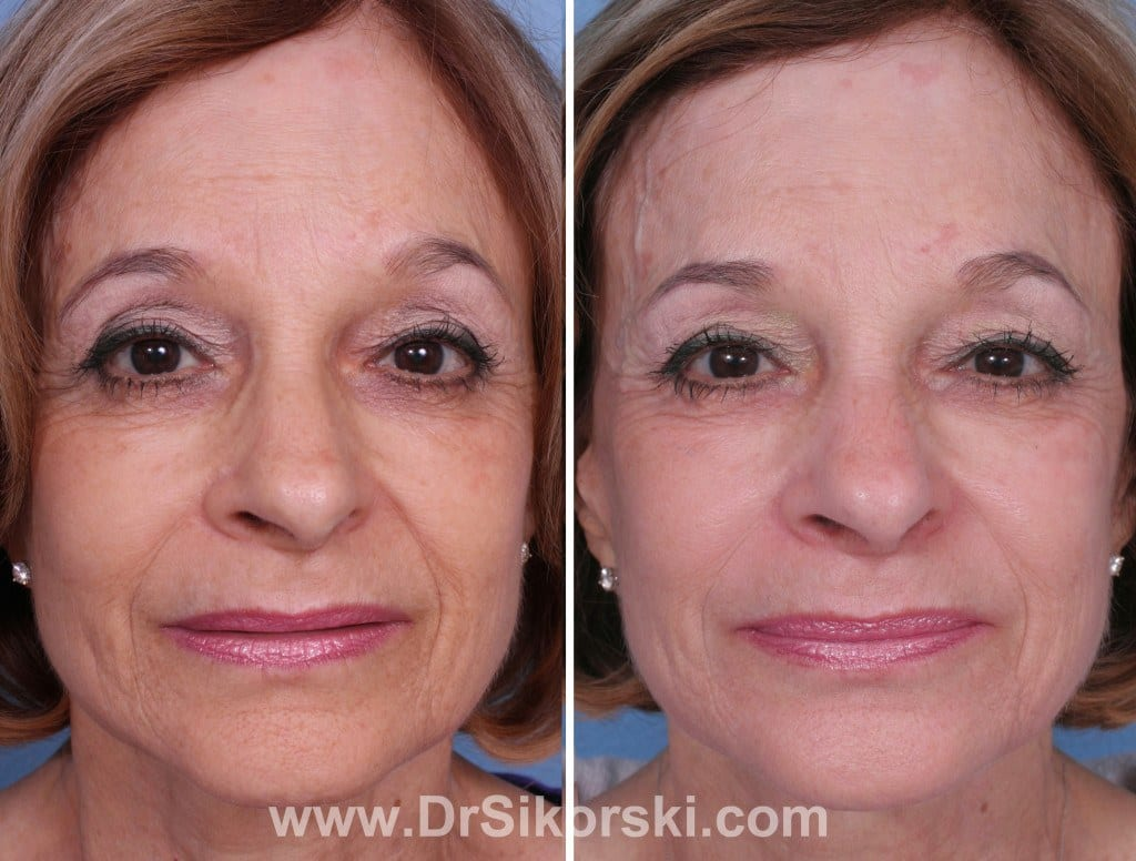 Bellafill Orange County Before and After Patient B