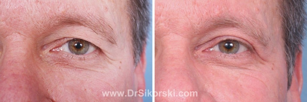 Blepharoplasty Mission Viejo Before and After Patient I