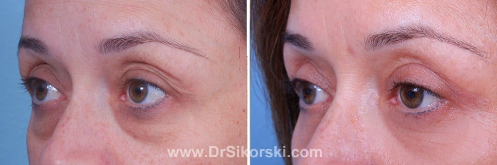 Blepharoplasty Mission Viejo Before and After Patient J