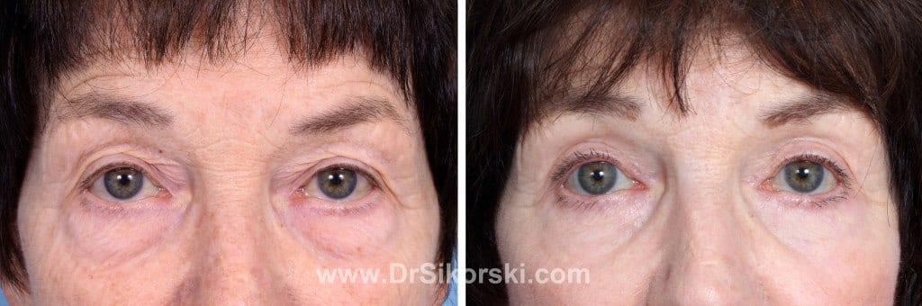 Blepharoplasty Mission Viejo Before and After Patient K