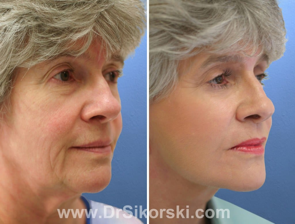 Blepharoplasty Orange County Before and After Patient B