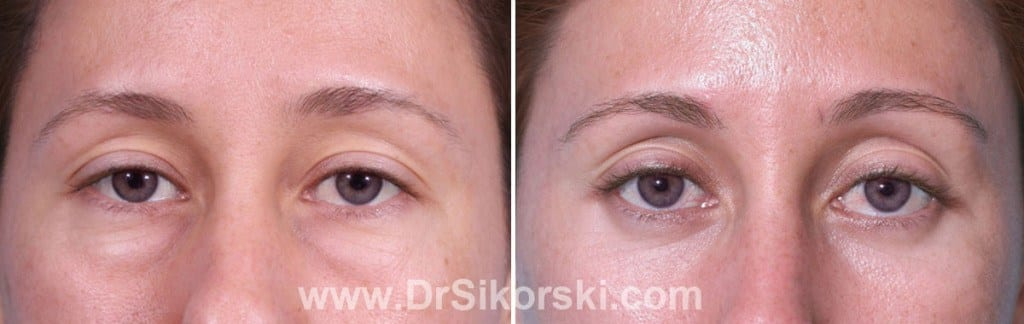 Blepharoplasty Orange County Before and After Patient C