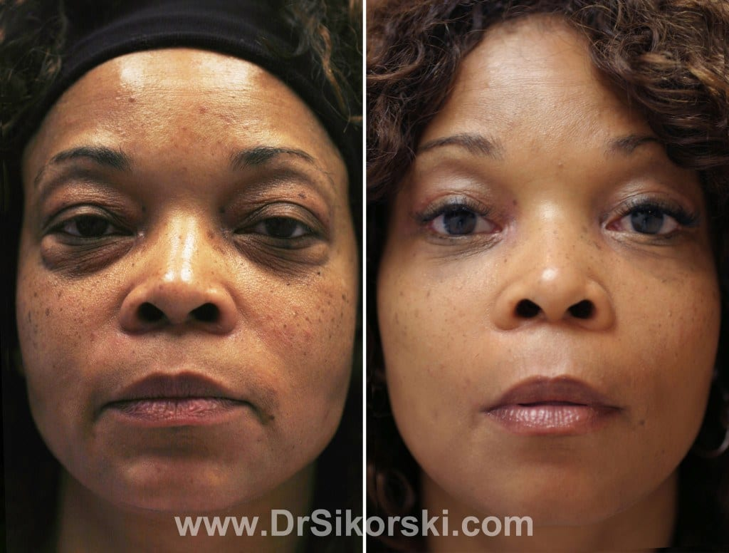 Blepharoplasty Before and After Patient D 1