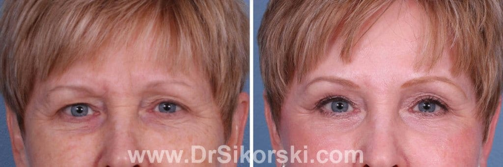 Blepharoplasty Orange County Before and After Patient E