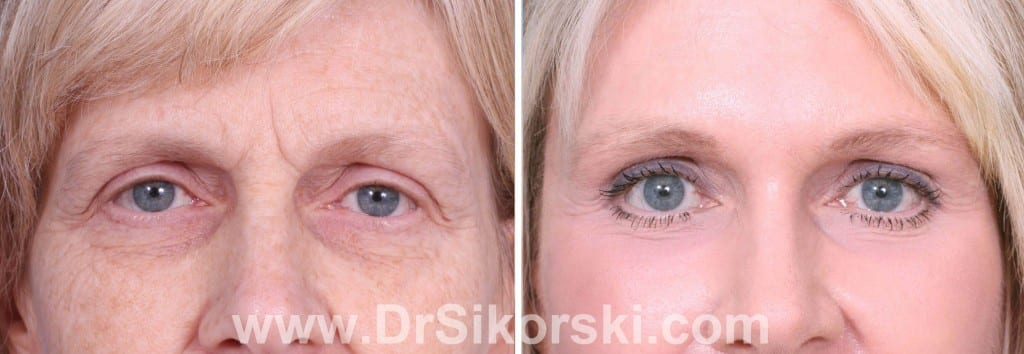Brow Lift Mission Viejo Before and After Patient F