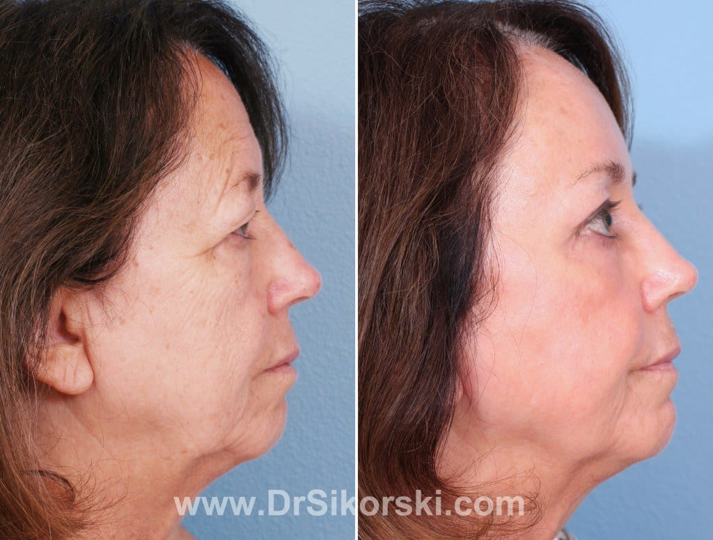 Brow Lift Mission Viejo Before and After Patient G