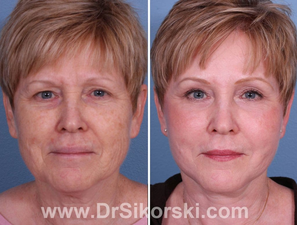 Brow Lift Mission Viejo Before and After Patient H
