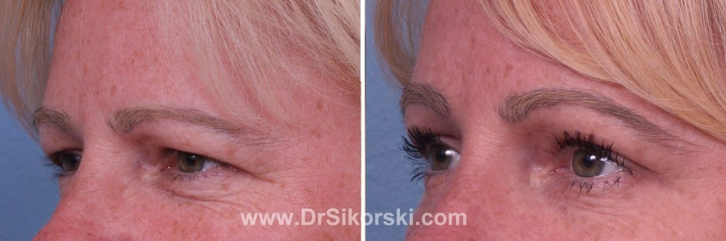 Brow Lift Orange County Before and After Patient A