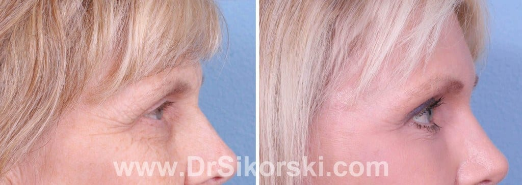 Brow Lift Orange County Before and After Patient D