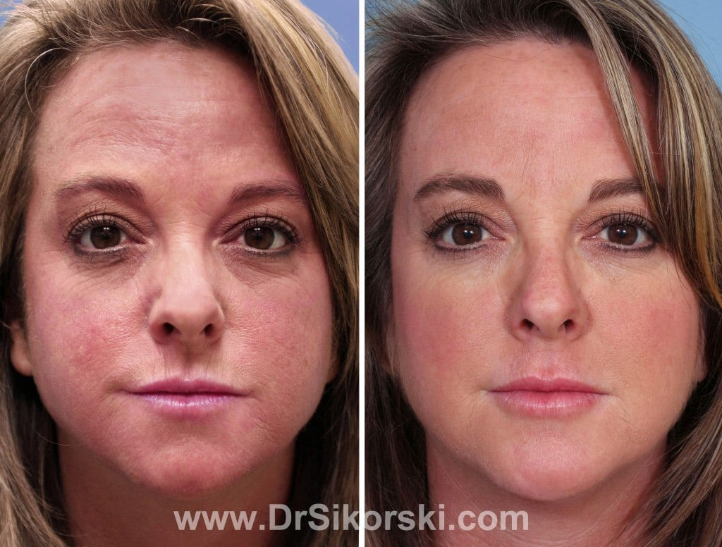 Chemical Peels Orange County Before and After Patient A