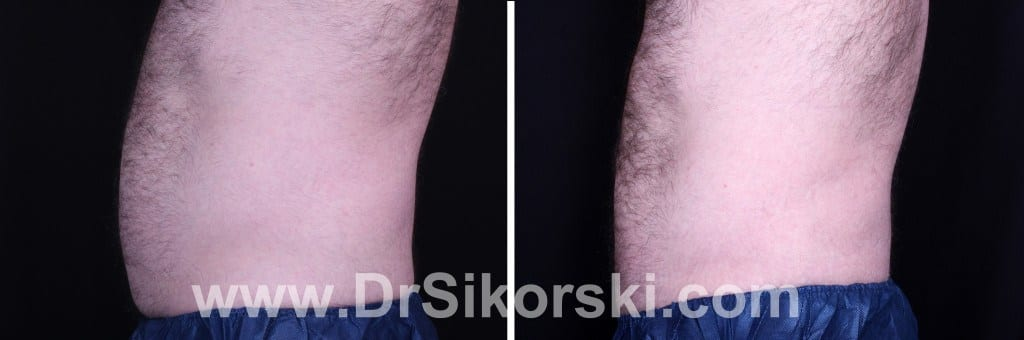CoolSculpting Mission Viejo Before and After Patient D1