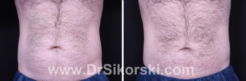 CoolSculpting Before and after Patient D